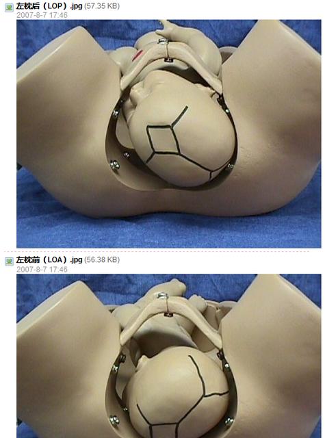 """左骶前位胎儿-简写为左(L)或右(R);2、代表骨名称,如顶先露为""""枕"""",即""""O"""