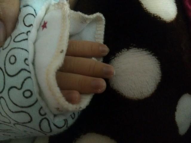 怎么感觉宝宝的指甲发紫呢