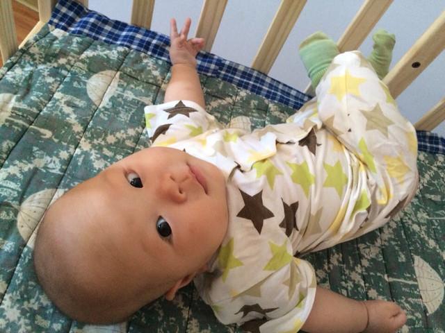 宝宝左肋骨比右边高图片