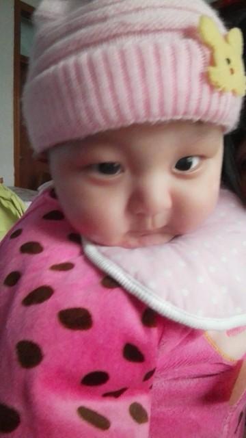 宝宝舌头上面有凸起的粉红色疙瘩